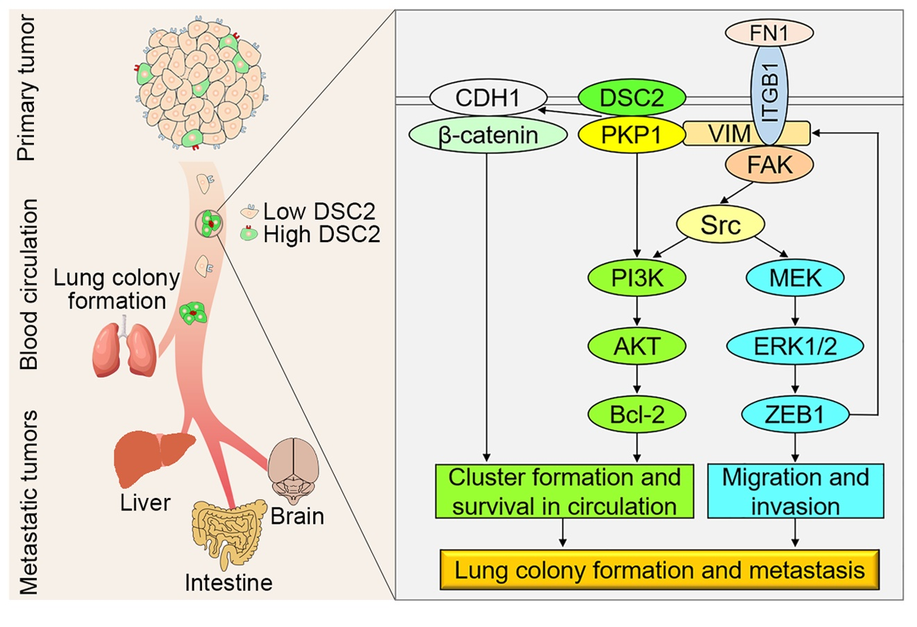 UM FHS study may help develop new anti-metastasis therapies